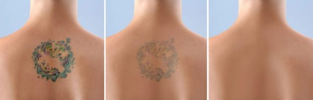 laser tattoo removal services near Harpenden Harmony Laser Lipo Clinic in Dunstable