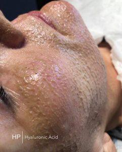 million dollar facial mask at Harmony Plus Beauty Salon & Skin Clinic near Leighton Buzzard