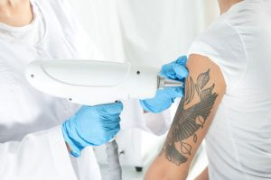 Laser Tattoo Removal at Harmony Laser Lipo Clinic Dunstable