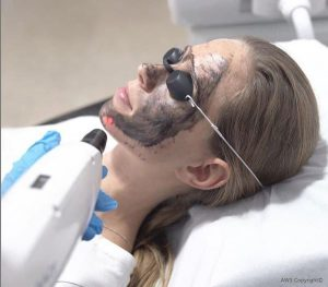 Charcoal Peel at Dunstable Aesthetics Clinic
