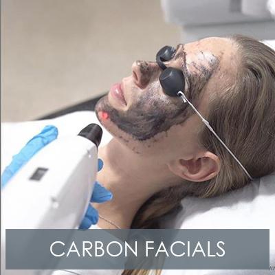 Carbon Laser Facials
