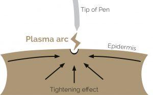 Plasma pen treatment at Harmony Aesthetics Clinic