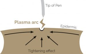 Plasma pen treatment at Harmony Aesthetics Clinic
