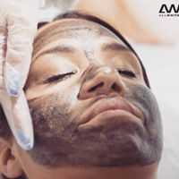 carbon laser facial at Dunstable Aesthetics Clinic