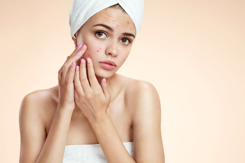 Acne Treatments at Top Dunstable Aesthetics Clinic