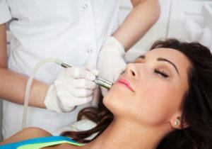 microdermabrasion facial treatments